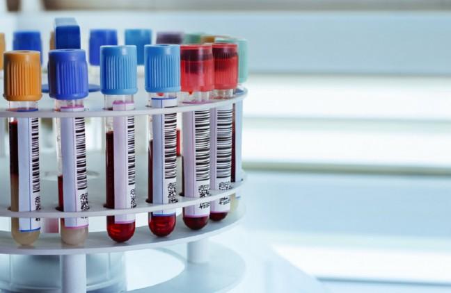 próbki krwi