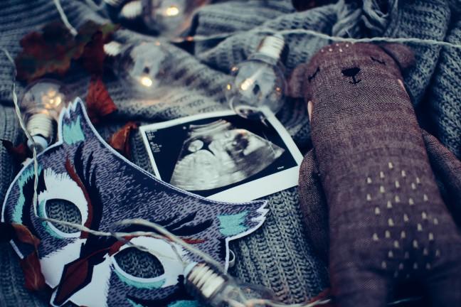 zdjęcie usg w otoczeniu gadżetów i zabawek dla dziecka